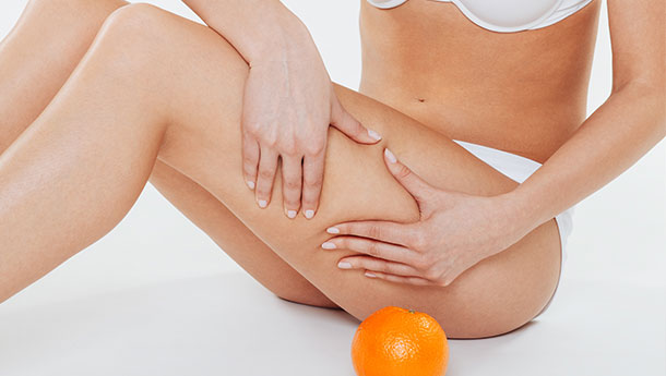 Cellulite – Diagnosis and Treatment