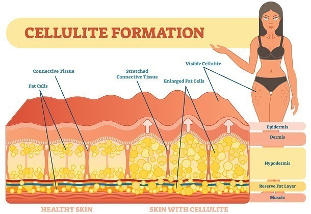 What You Need to Know About Cellulite Treatments